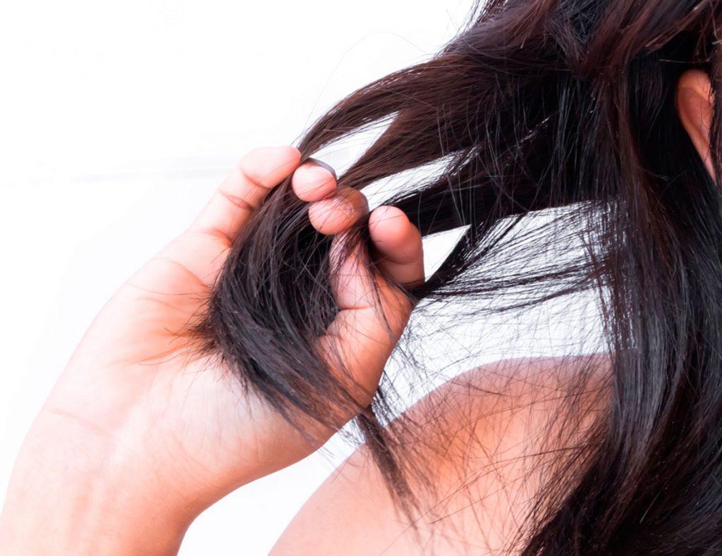 Unidad médica de Alopecia