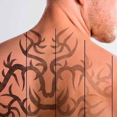 eliminación-de-tatuajes