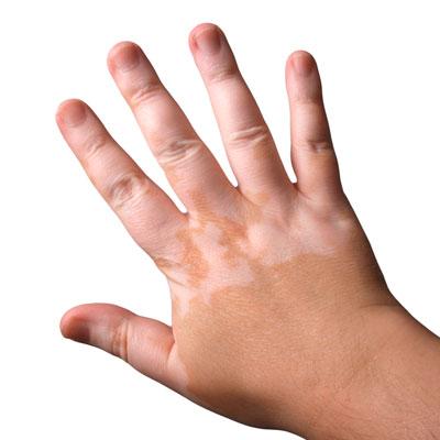 Fototerapia para Vitíligo y Psoriasis