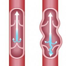 Tratamiento esclerosis con espuma