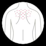 Espalda zona más afectada por el acné