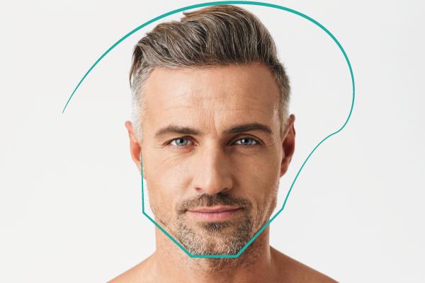 tratamiento de masculinización facial