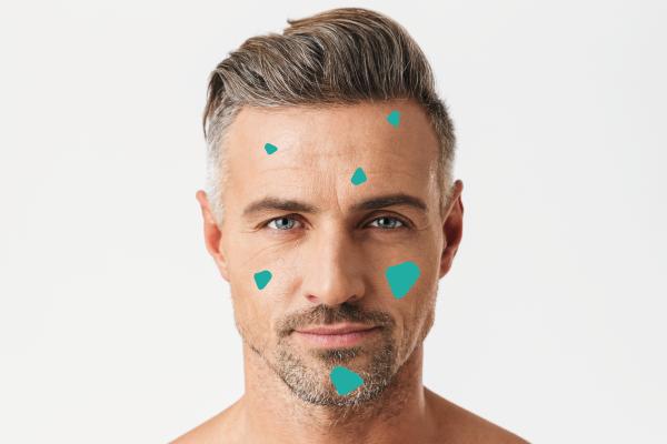 tratamiento para manchas faciales